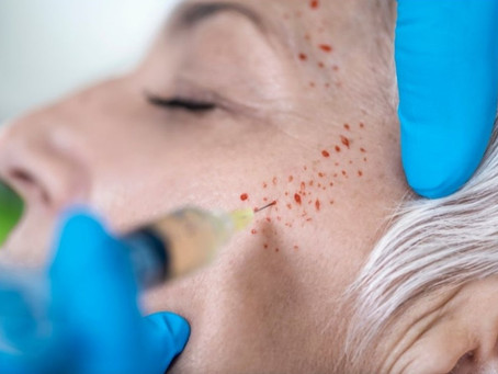 Is PRP Therapy Right for your Aesthetics Practice?