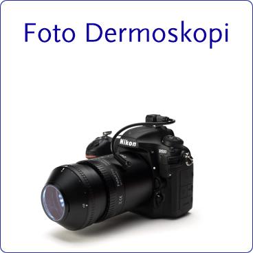 Foto_Dermoskopi_çerçeveli.png