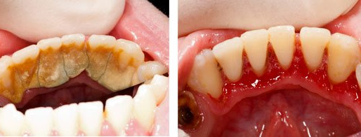 Scaling/Cleaning, Does it harm your teeth?