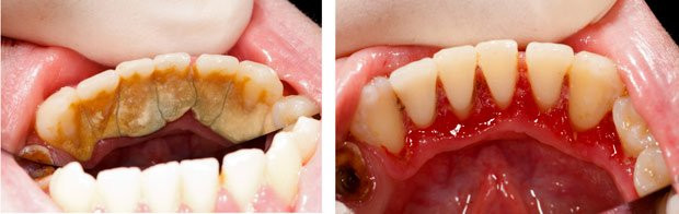Pediatric Dentist in Sharjah