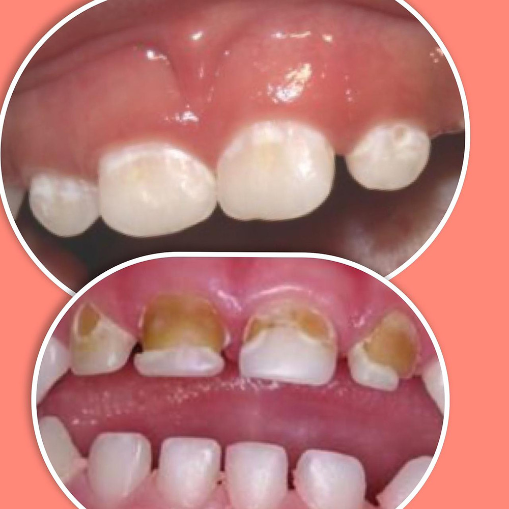 Early Childhood Caries - Pediatric Dentistry
