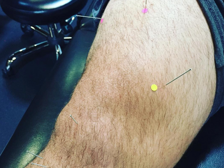 Dry Needling...What is it and is it Safe?