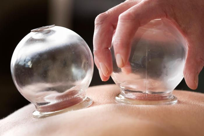 60-Minute Therapeutic Cupping Massage