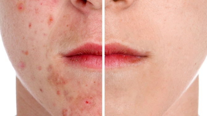 Acne can be helped with a low carbohydrate diet.