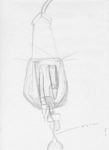 Penile Prosthetic Adjustment4.jpg