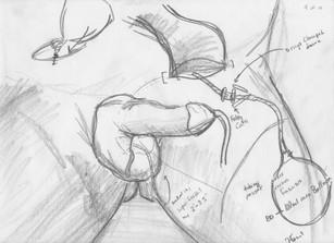 Penile Prosthetic Adjustment9.jpg