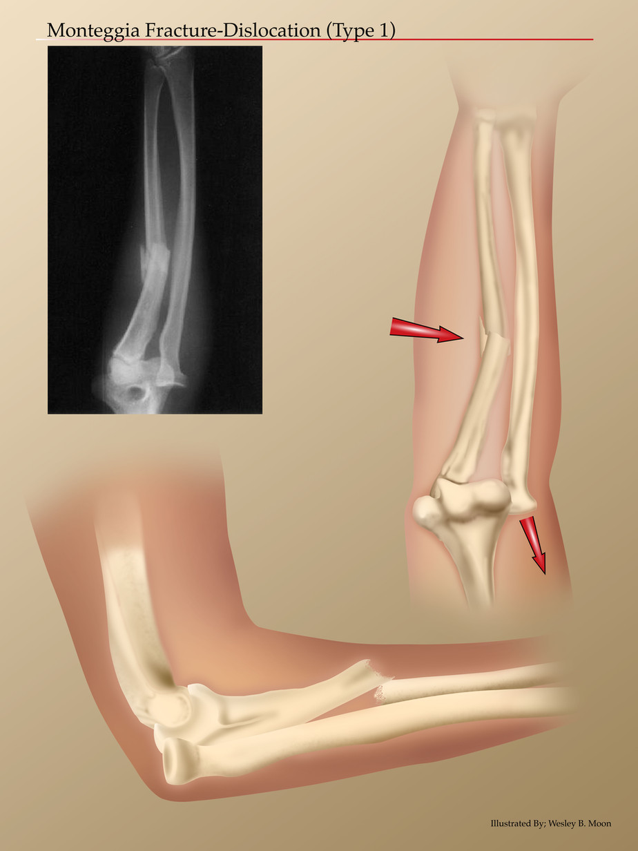 Monteggia Fracture Dislocation Type 1.jp