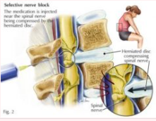 Nerve Root Blocks.PNG