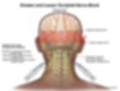 Occipital Nerve Blocks.PNG