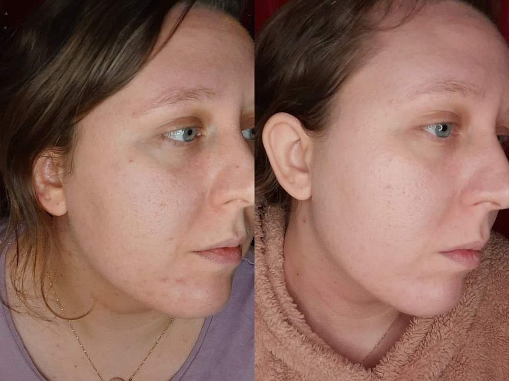 Skin results before and after