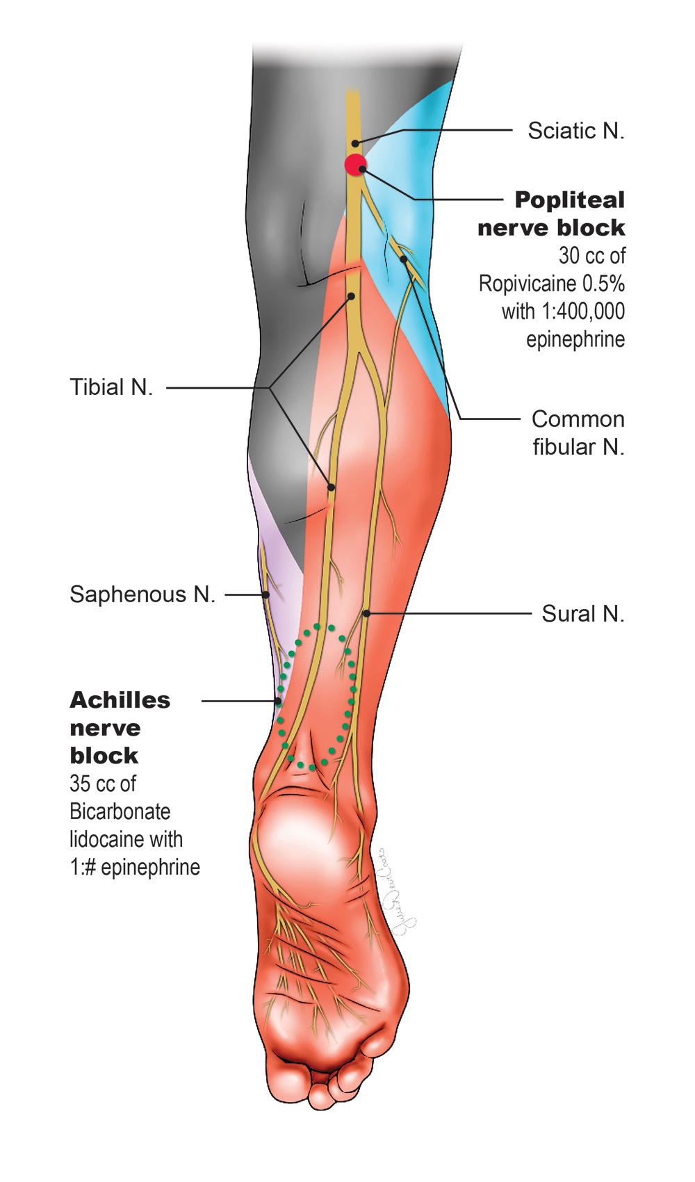 Ankle Block