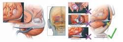 Meningioma pathology and access