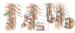Spinal cord tethering treatment