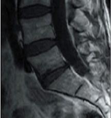 Intérêt de la classification IRM Modic dans la prise en charge des discopathies en ostéopathie.