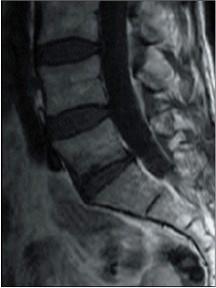 Modic, IRM, ostéopathie, manipulation vertébrale