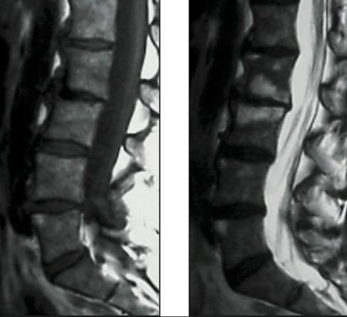 Modic II, ostéopathie, IRM