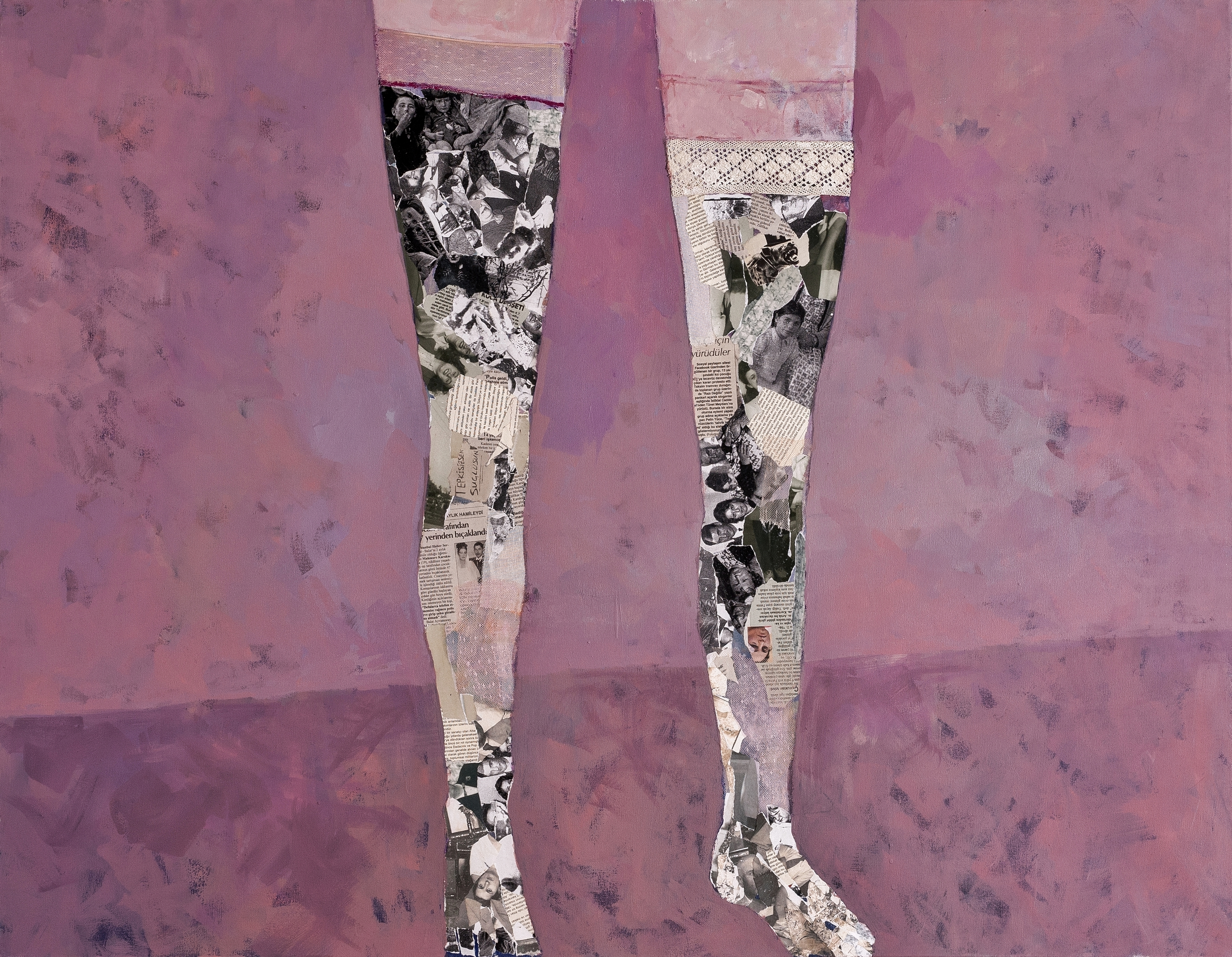 My Legs