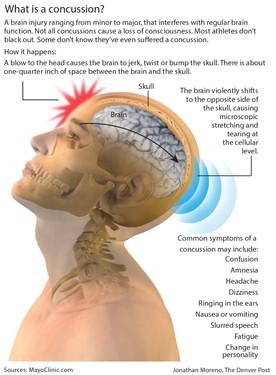 concussion+graphic+.jpg