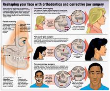 Facial+surgery+.jpg