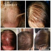 Scalp Micropigmentation Treatment at Natrabrow