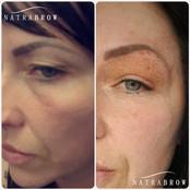 Fibroblast Treatment at Natrabrow