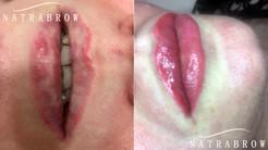 Lip Correction at Natrabrow