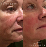 Hifu Treatment, Before and after