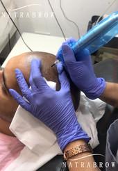 Scalp Micropigmentation process at Natrabrow
