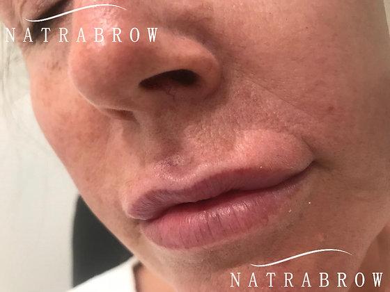 Lip Filler 0.8ml