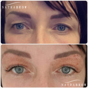 Fibroblast Eyes at Natrabrow