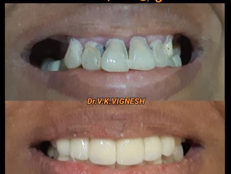 Dental Clinic in Kamarajapuram