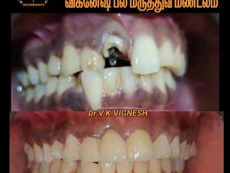 Dental clinic in vengaivasal   VDZ   Dr.V.K.VIGNESH  