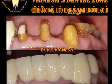 Dental Clinic in Madambakkam