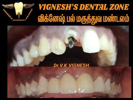 Dental clinic in madambakkam and vengaivasal   VDZ   Dr.V.K.VIGNESH   Dr.B.SSNEHA VIGNESH