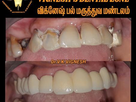 Dental Clinic in Sembakkam