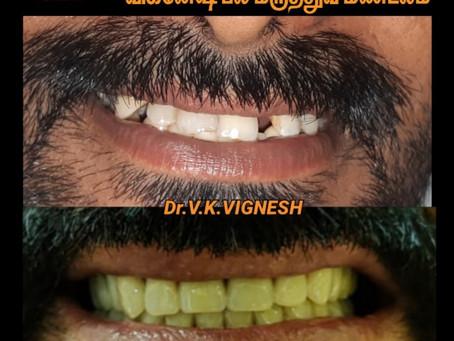 Dental Clinic in Santhosapuram