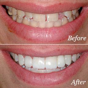 Costmetic Dentist Richland