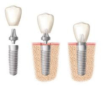 Richland Dentist Implants