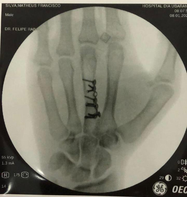radiografia da mão esquerda de Matheus Francisco após a cirurgia. (foto arquivo pessoal)