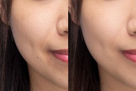 專業磨皮及臉部調整