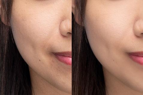 專業磨皮及臉部調整   Photogram Studio