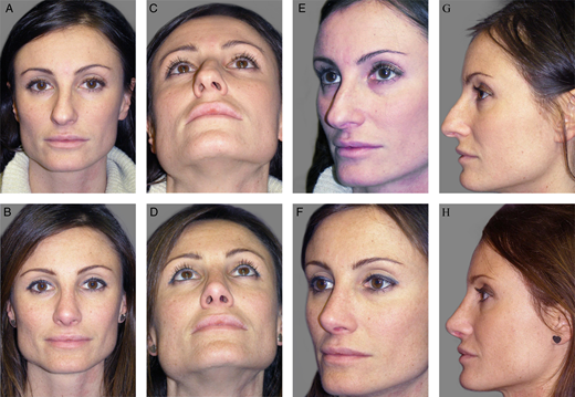IFAAS Hands-On Master Class (Fresh Cadaver): 2nd Beauty of the Face ELite Master Class - Rhinoplasty, Facial Rejuvenation, Fat Grafting |  June 7-8, 2019 : Verona, Italy