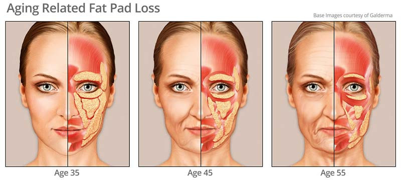 Ageing Related Fat Pad Loss