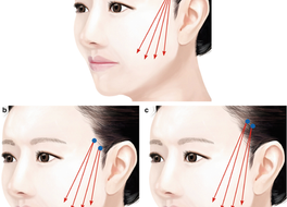 Complications of Thread Lift and How to Manage II: Thread Migration, Bulging at Entry Point, Sunken
