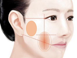 8 Possible Complications of Thread Lift and How to Manage Them