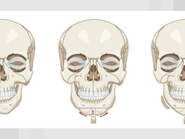 Facial Bone Contouring: Complications and How to Manage