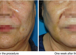Complications of Thread Lift and How to Manage: Thread Protrusion, Infection, Dimpling and Bruising