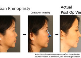 Asian Rhinoplasty: Understanding Autologous Cartilages - Roles, Advantages and Disadvantges