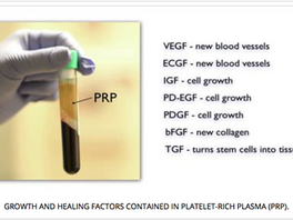Platelet-Rich-Plasma (PRP) Treatment: Face, Neck and Eye Rejuvenation