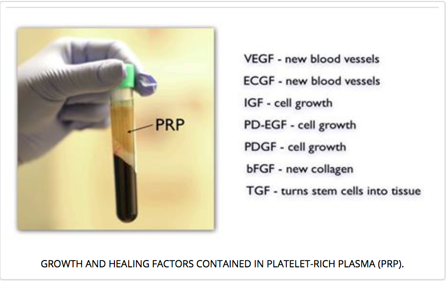 Platelet-Rich Plasma (PRP) Treatment: Face, Neck and Eye Rejuvenation